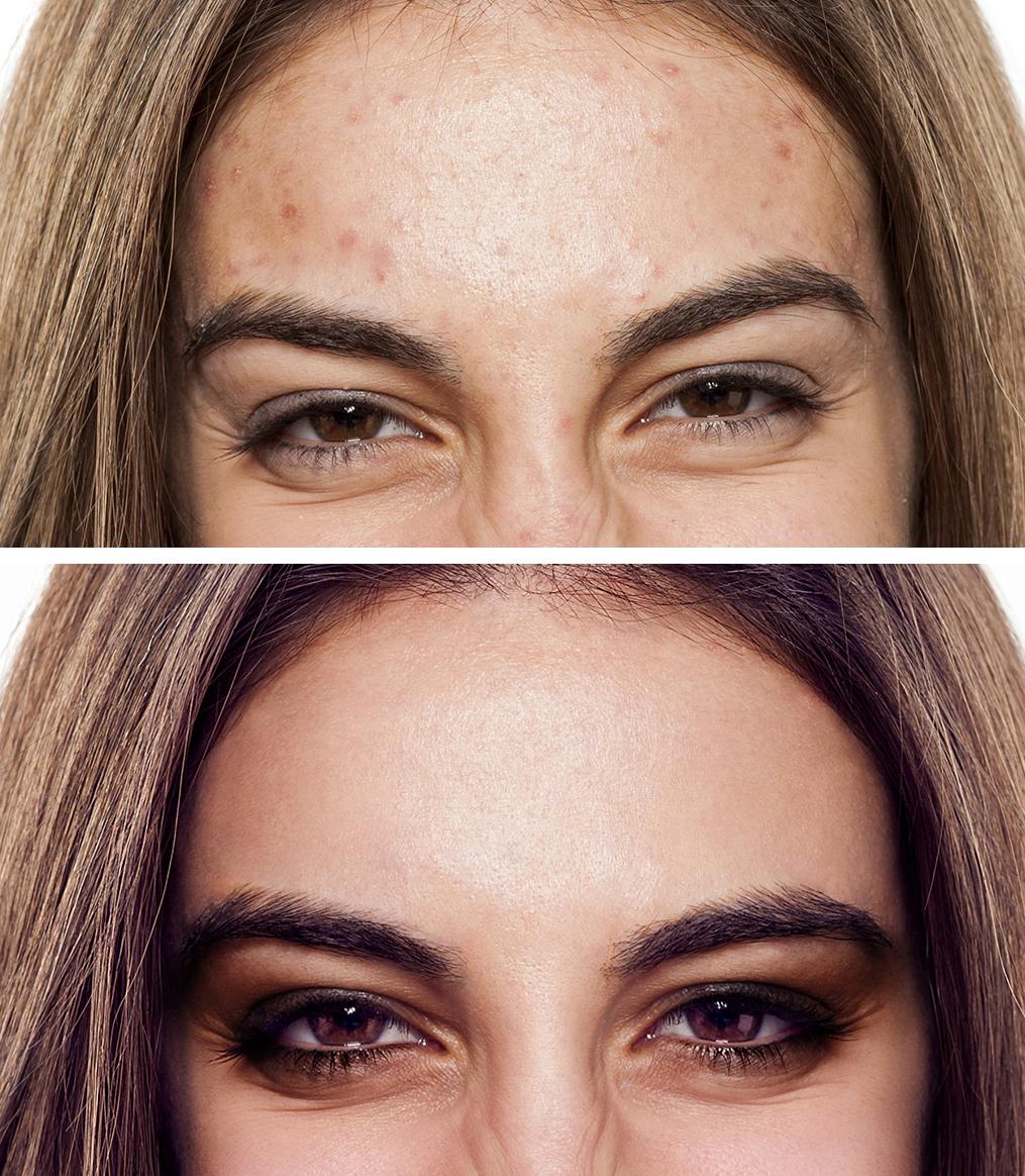 Porträt einer Frau im Vorher-nachher-Vergleich, Retuschieren mit Affinity Photo